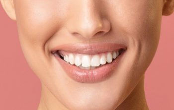 What You Need to Know About Dental Bleaching or Whitening